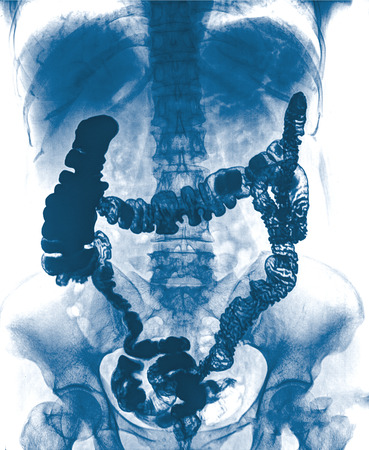 intestinal: picture of intestinal abdominal xray
