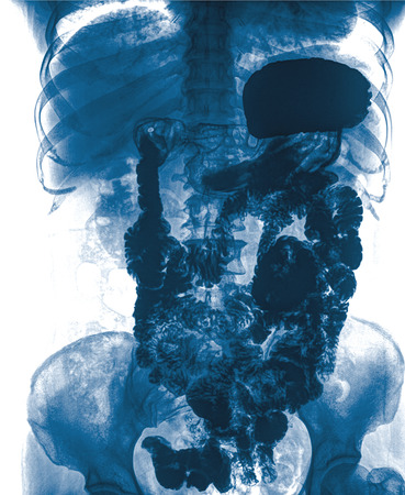 shadowgraph: Intestine and spine x-ray