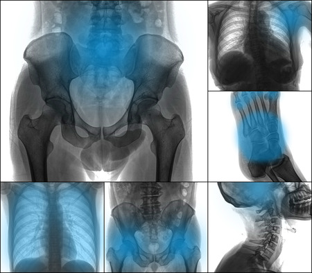 multiple: Collection X-ray multiple part of human , painful