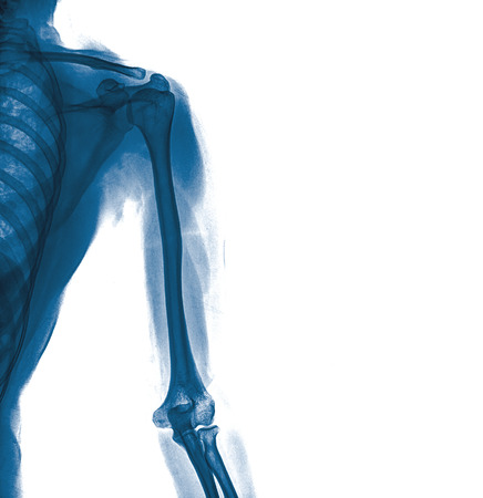 film x-ray normal shoulder and arm