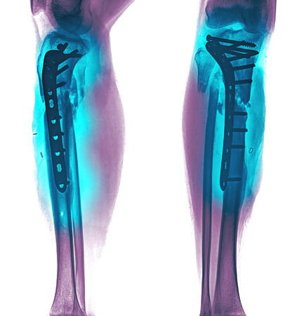 tibia: film leg APlateral : show fracture shaft of tibia and fibular (legs bone). patient was operated and insert plate and screw for fix legs bone