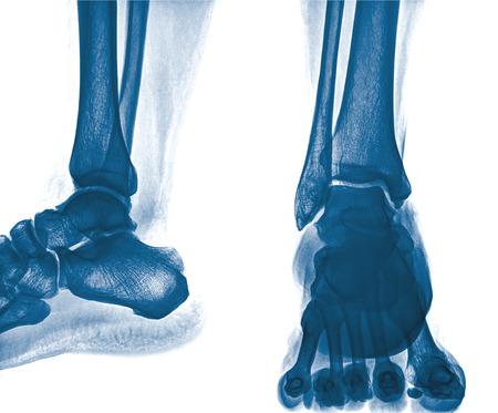 dislocation: Primer plano de la radiografía de tobillo