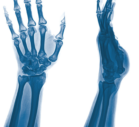 fractura: radiograf�a de la fractura distal del radio (fractura de Colles) (mu�eca rota) Foto de archivo
