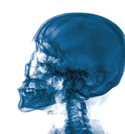 radiogram: X-ray Head