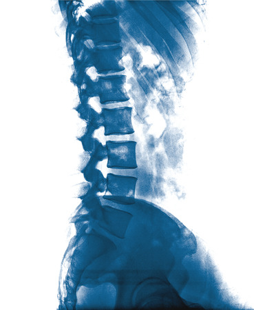 spine surgery: X-ray lumbo-sacral spine and pelvis of asian adult people ,side view