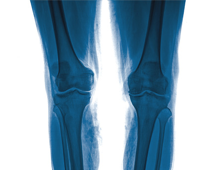 tortured body: Xray of a human knee isolated Stock Photo