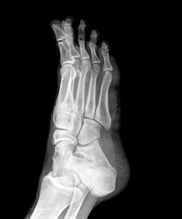 luxacion: Primer plano de la radiograf�a de tobillo del pie Foto de archivo
