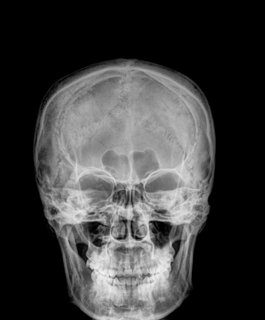 spine x ray: Film x-ray Skull lateral : show normal humans skull and cervical spine Stock Photo