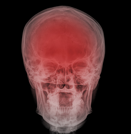 radiological: fine image detail of head xray film , front view
