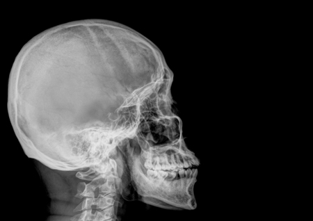 radiological: fine image detail of head xray film , side view