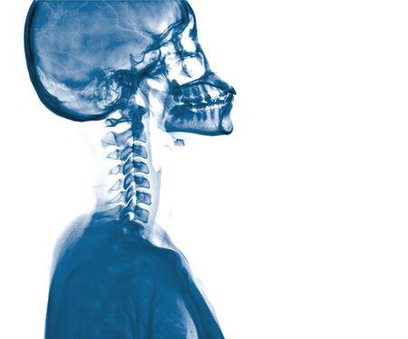 cva: X-ray skull and Stroke ( cerebrovascular accident (CVA) )
