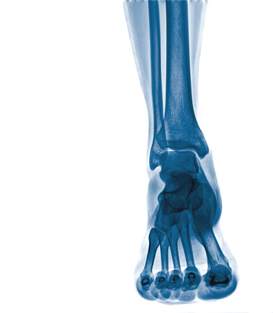 rheumatoid: Arthritis at ankle joint (Gout , Rheumatoid arthritis) Stock Photo