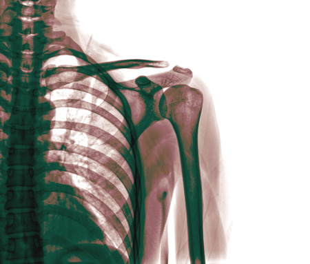luxacion: imagen de rayos x de la articulaci�n del hombro doloroso o lesi�n, luxaci�n de hombro