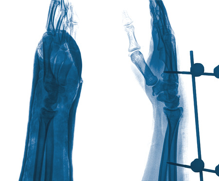 persona enferma: radiografía de la muñeca de la fractura y la infección crónica. Fue operado y externa fija por la placa y el tornillo, la vista lateral Foto de archivo