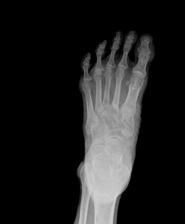 xray of feet front view