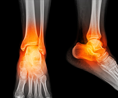 Close up x-ray of ankle Stock Photo