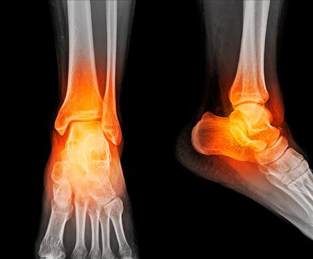 Close up x-ray of ankle 版權商用圖片