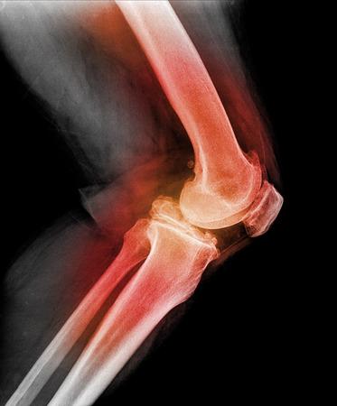 pierna rota: Imagen mostrando las articulaciones de la rodilla de rayos x