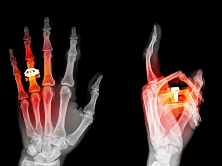 skeleton hand: Medical X-Ray imaging of hand fingers used in diagnostic radiology of skeleton bones , two position