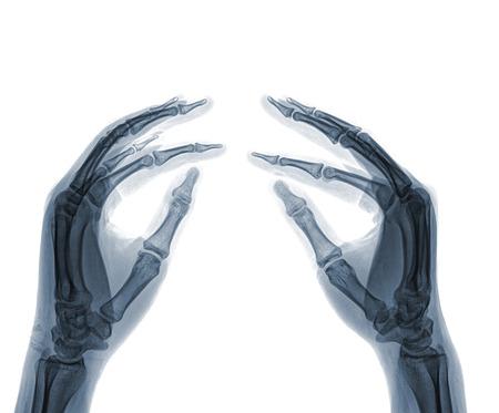thumb x ray: X-Ray Hand Stock Photo