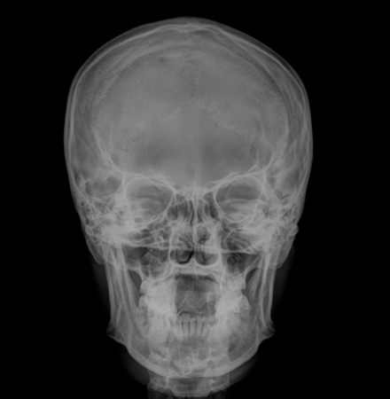 fine image detail of head xray film , front view