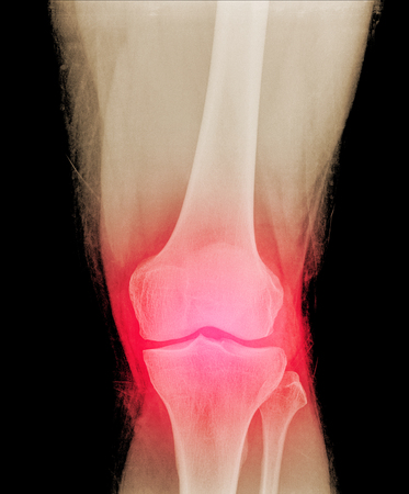 kneecap: Close-up xray of a human knee isolated on back background , front view