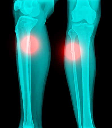 tibia: X-ray film of proximal tibia and intra articular fracture