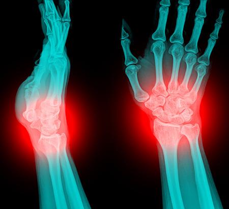 distal: radiografía fractura de radio distal (fractura de Colles) (fractura en la muñeca) Foto de archivo