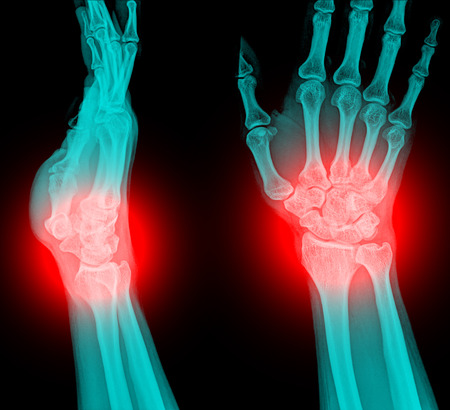 distal: xray fracture distal radius (Colles fracture) (wrist broken)
