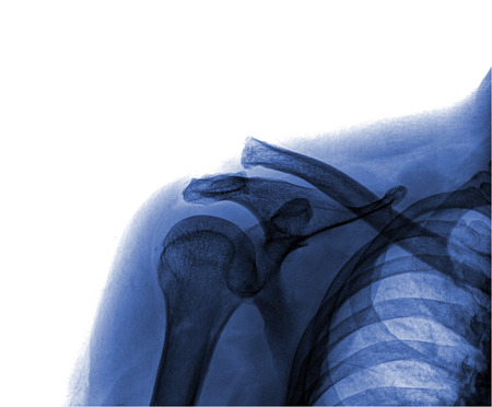 chest x ray: X-ray of human shoulder
