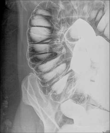thumb x ray: picture of intestinal abdominal xray