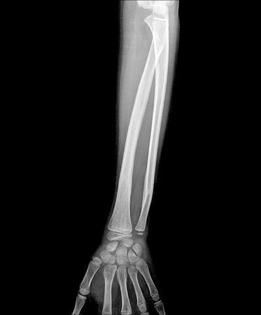 distal: Fractura de radio distal (hueso de la mu�eca) Foto de archivo