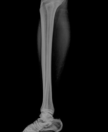 shin: X-ray image of shin , side view