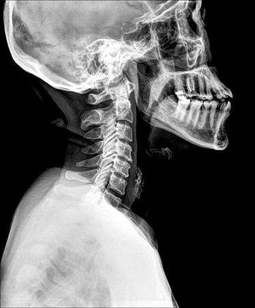 spinal conditions: X-ray of bone neck