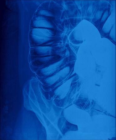 caecum: picture of intestinal abdominal xray