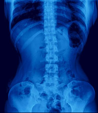 pyelonephritis: X-ray image of Intravenous pyelogram (IVP), Scout film Stock Photo