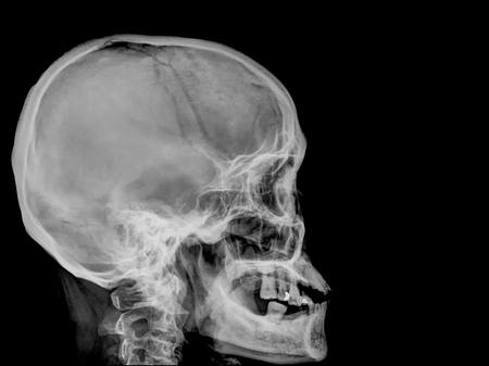 sag: skull x-rays image sagital plane