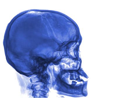 radiological: skull x-rays image sagital plane