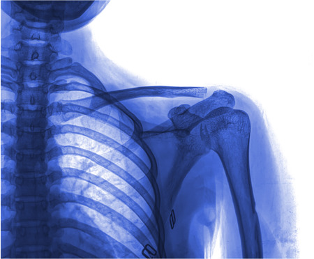 X-ray of human shoulder