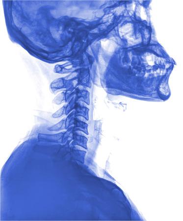 resonancia magnetica: MRI - Magnetic Resonance Imaging of Spinal Column and Skull Head