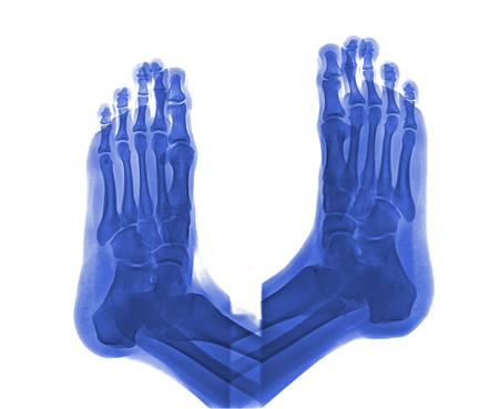human right: human right and left foot ankle xray picture