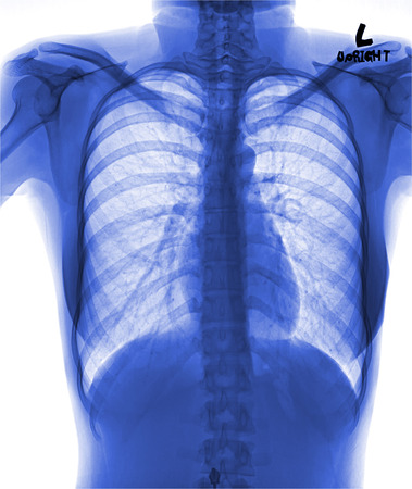 rib cage: View of a human x-ray film, taken to examine the lungs Stock Photo