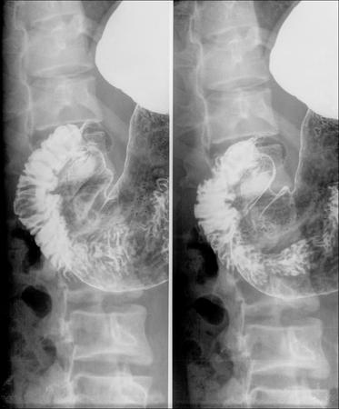 rectum cancer: Intestine Xray (X-ray) photo Stock Photo