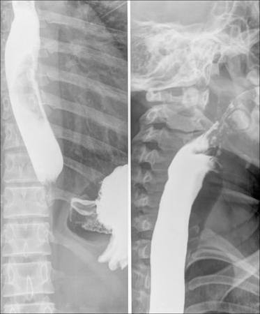 caecum: Intestine Xray (X-ray) photo Stock Photo