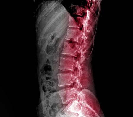 X-ray lumbo-sacral spine and pelvis