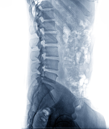X-Ray Image the spine side view Of Human for a medical diagnosis , isolate on white background Imagens