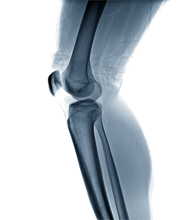 Film x-ray knee APlateral : Osteoarthritis knee (Inflammation at knee) , side view , isolate on white background