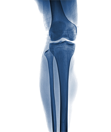 Film x-ray knee APlateral : Osteoarthritis knee (Inflammation at knee) , front view , isolate on white background