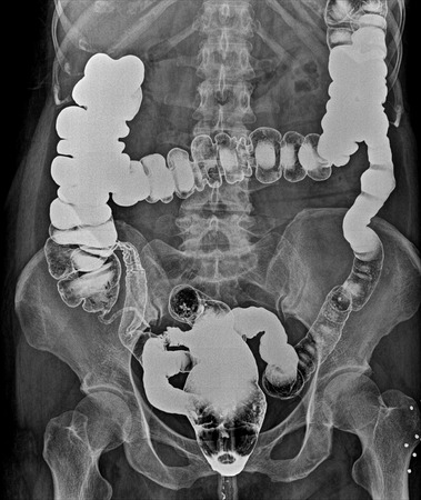 descending colon: X-ray image of plain abdomen , colon