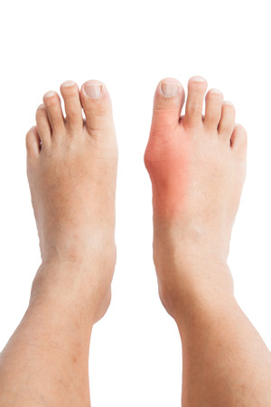 A pair of feet with the right foot distorted with inflamed gout photo